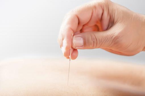 Acupunctuur tegen overgewicht